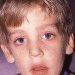 аденоидное лицо у мальчика, фото