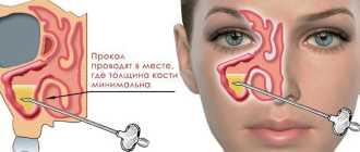 Прокол носа при гайморите – как делают, последствия – Мой Лор