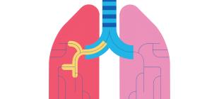 Как лечить стойкий кашель